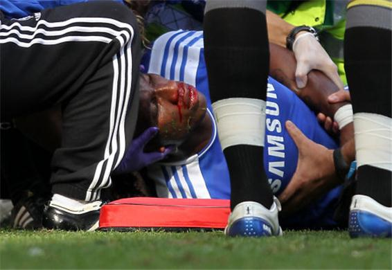Drogba suffered a horrific injury