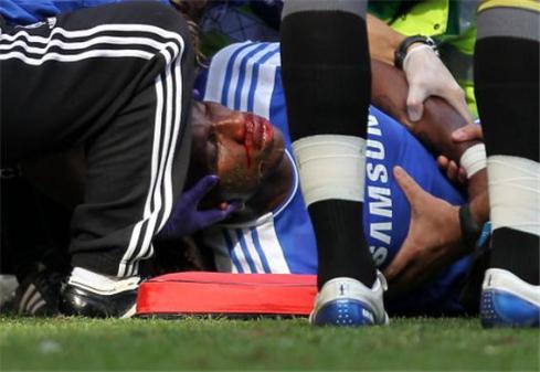 Drogba suffered a horrific injury